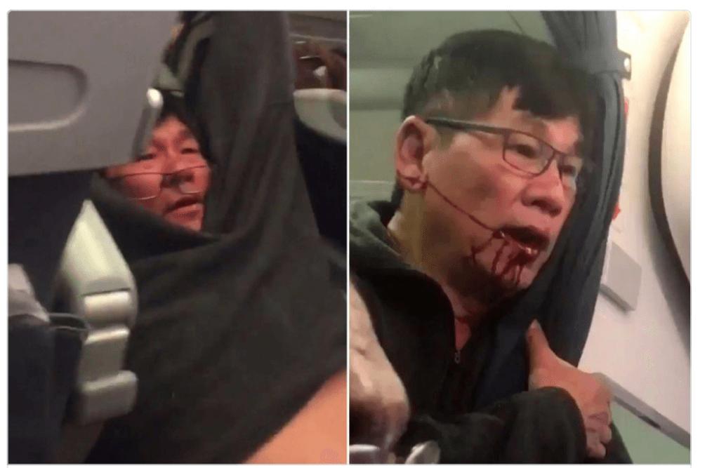 Bloodied passenger